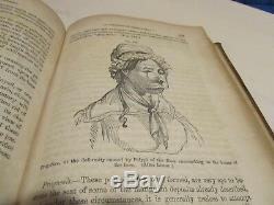 Surgery Medical Book c1856 Henry Smith 274 Wood Cuts RARE Original Pre Civil War